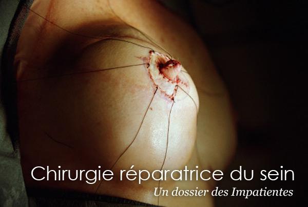Vins de chirurgie de reconstruction mammaire